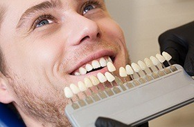 Man's smile compared with tooth color chart