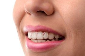 smile wearing Invisalign